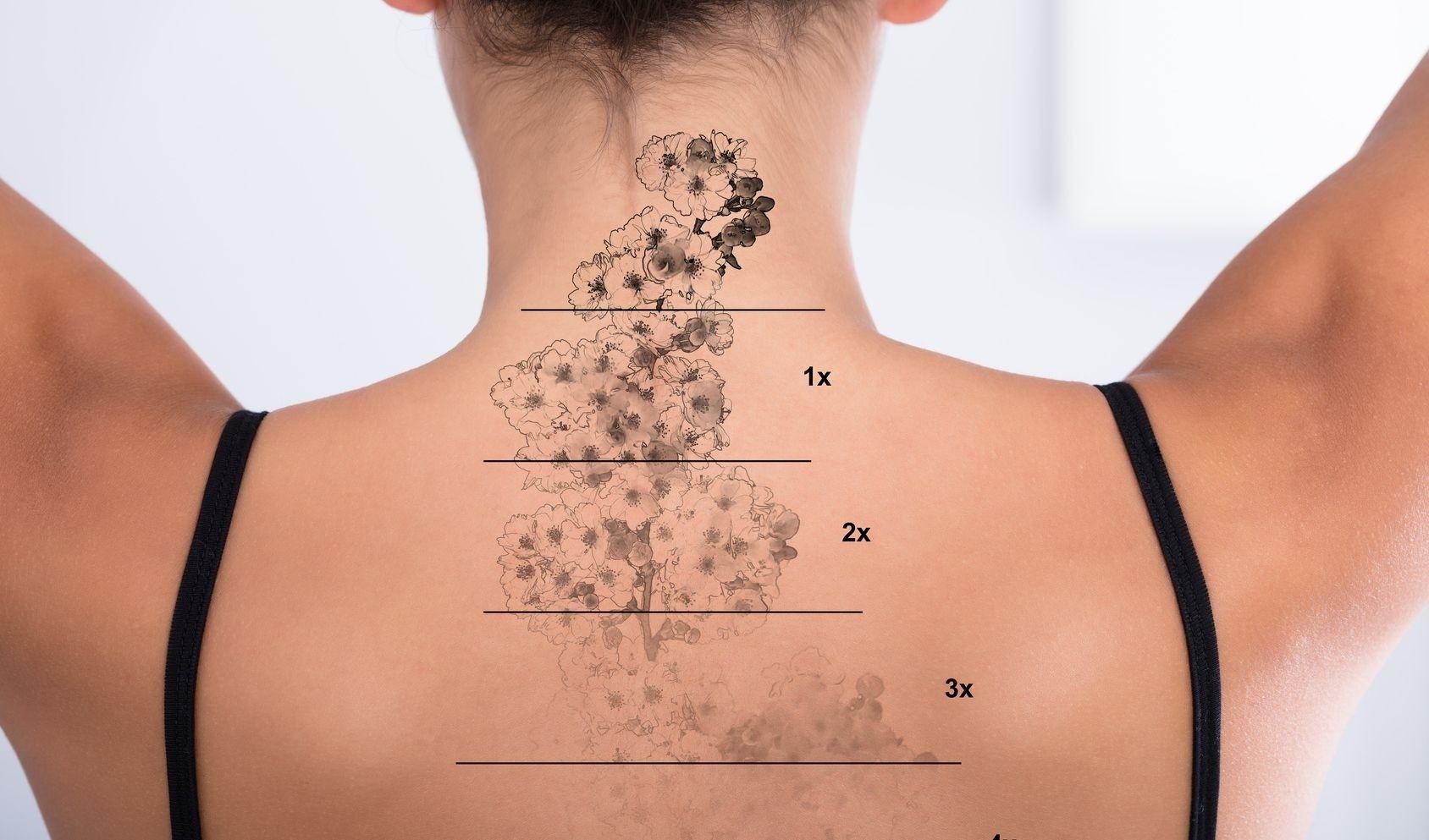 Rimozione Laser Dei Tatuaggi Estheticon It