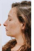 Profiloplastica (Rinoplastica e Mentoplastica) - Foto del prima - Dr Uberto Giovannini
