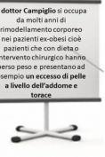 Addominoplastica - Foto del prima - Dott. Gianluca Campiglio