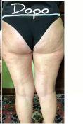 Trattamento della cellulite - Foto del prima - Dott.ssa Elvira Gisella Cotilli