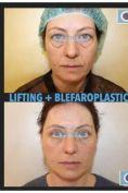Blefaroplastica - Foto del prima - Dott. Savino Bufo