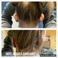 Operazione orecchie (Otoplastica) - Foto del prima - Dott. Andrea Giansanti
