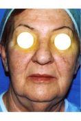 Lifting viso - Foto del prima - Physiomed