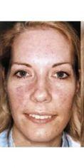 Procedure laser in dermatologia estetica  - Foto del prima - Dott. Giorgio Russo