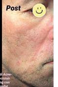 Acne laser, Cicatrici da acne laser - Foto del prima - Dott. Tommaso Savoia Med