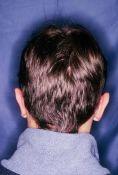 Operazione orecchie (Otoplastica) - Otoplastica con sola correzione eccesso cartilagine concale