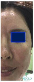 Lipofilling (grasso) - Foto del prima - Victoria Medical Center