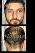 Operazione orecchie (Otoplastica) - Foto del prima - Dott. Luca Maione