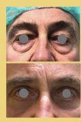 Blefaroplastica - Foto del prima - Dott. Tommaso Savoia Med