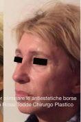Blefaroplastica - Foto del prima - Dott. Alberto Rossi Todde