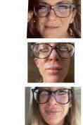 Aumento labbra - Foto del prima - Dott. Alberto Rossi Todde