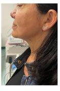 Profiloplastica (Rinoplastica e Mentoplastica) - Foto del prima - Dr. Mario Gioia