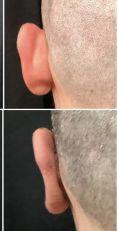 Operazione orecchie (Otoplastica) - Foto del prima - Dott. Andrea Manconi