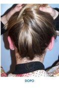 Operazione orecchie (Otoplastica) - Foto del prima - Dott. Angelo  Scioli