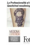 Rimozione tatuaggi - laser - Foto del prima - Dott. Luigi Turco