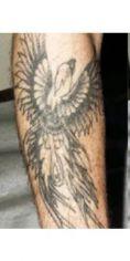 Rimozione tatuaggi - laser - Foto del prima - Dott. Giorgio Russo