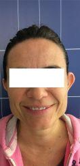 Otoplastica mini invasiva - Otoplastica Bilaterale non Invasiva con Earfold®. Foto prima e dopo. Controllo a un a settimana