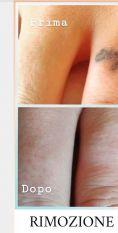 Rimozione tatuaggi - laser - Foto del prima - Dott.ssa Elvira Gisella Cotilli