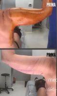 Lifting delle braccia - Foto del prima - Dott. Matteo Tutino