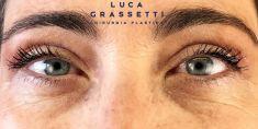 Blefaroplastica - Foto del prima - Dott. Luca Grassetti