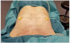 Dr. Paolo Montemurro - Foto del prima - Dr. Paolo Montemurro