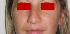 Rinoplastica - Naso moderatamente e globalmente più piccolo rispetto al pre