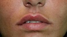 Aumento labbra - Foto del prima - Dott. Sergio Delfino M.D.