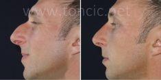Rinoplastica - Foto del prima - Poliklinika za estetsku kirurgiju Dr. Tončić