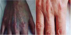 Rimozione tatuaggi - laser - Foto del prima