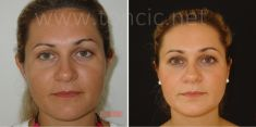 Operazione orecchie (Otoplastica) - Foto del prima - Poliklinika za estetsku kirurgiju Dr. Tončić