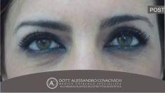 Blefaroplastica - Foto del prima - Dott. Alessandro Covacivich
