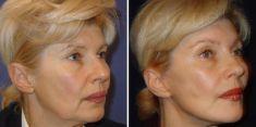 Lifting viso - Foto del prima - Poliklinika za estetsku kirurgiju Dr. Tončić