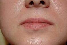 Aumento labbra - Aumento volumetrico delle labbra con Acido Jaluronico, età 27 aa., anno 2008-