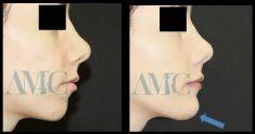 Profiloplastica (Rinoplastica e Mentoplastica) - Foto del prima - Dott. Aurelio M. Cardaci