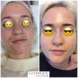 Terapia fotodinamica - Terapia fotodinamica acne - Risultati dopo n.3 sedute