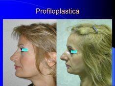 Profiloplastica (Rinoplastica e Mentoplastica) - Foto del prima - Dott. Tommaso Savoia Med