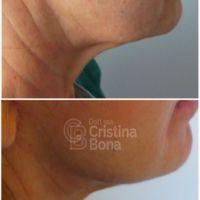 Dott.ssa Cristina Bona - Foto del prima - Dott.ssa Cristina Bona
