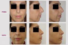 Rinoplastica - Profiloplastica + Rinoplastica
