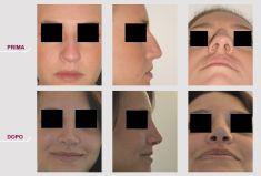 Rinoplastica - Rinoplastica Naso Corto e Largo