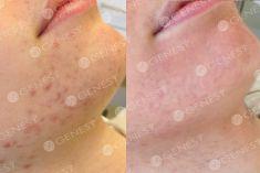 Acne laser, Cicatrici da acne laser - Foto del prima - Dott. Fabio Chemello CENTRO MEDICO GENESY