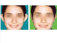 Operazione orecchie (Otoplastica) - Foto del prima - Dott. Fioravante Orefice
