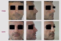 Rinoplastica secondaria - Foto del prima - Prof. Carlo Grassi