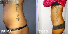 Liposuzione - Foto del prima - Dott. Ciro Borriello