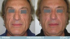 Lipofilling (grasso) - Foto del prima - Dott. Maurizio Baldo M.D.