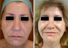 Dott. Tommaso Savoia Med - Lifting facciale