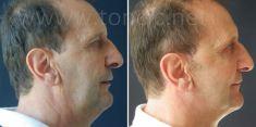 Liposuzione - Foto del prima - Poliklinika za estetsku kirurgiju Dr. Tončić