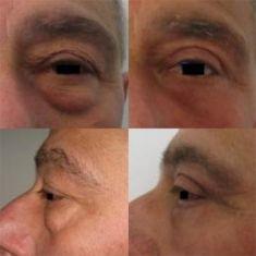 Blefaroplastica inferiore - Trattamento Chirurgico Con Blefaroplastica