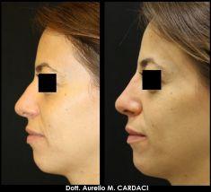 Rinoplastica non chirurgica - Filler mento