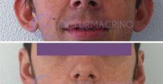 Operazione orecchie (Otoplastica) - Foto del prima - Dott. Yuri Macrino M.D.