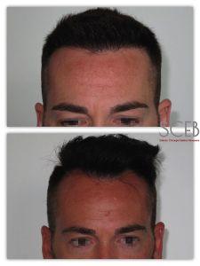 Trapianto capelli - Foto del prima